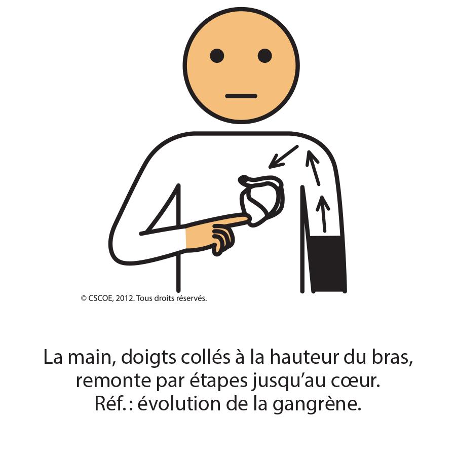 Gangrène1_txt