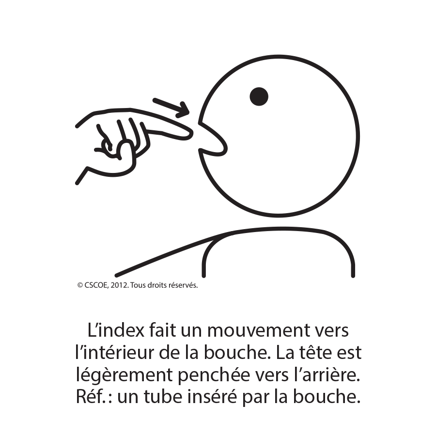 Intubation_txt_NB