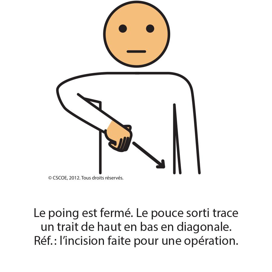 Opération_txt
