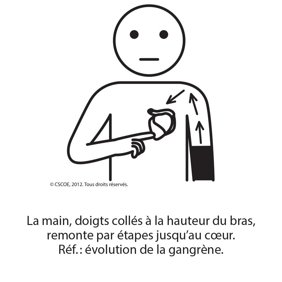 Gangrène1_txt_NB